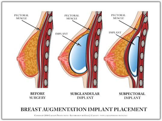 Liposuction Waist Tummy Temporary Breast Enlargement Saline