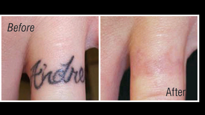 before-and-after-using-laser-tattoo-removal