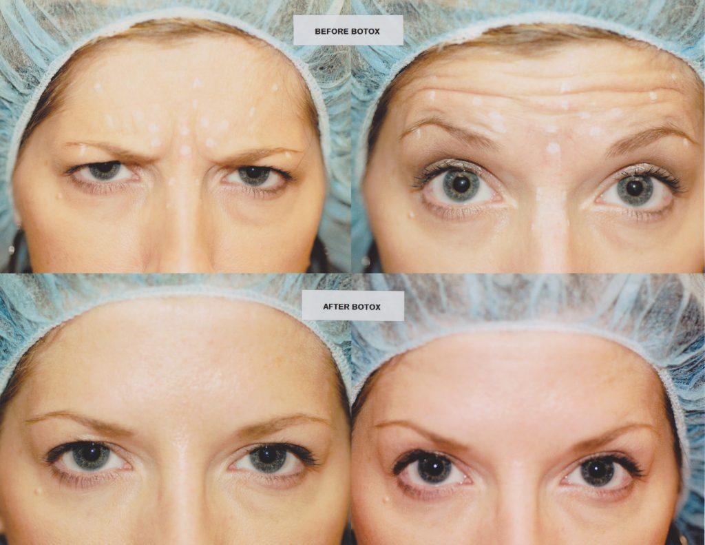 Botox-Seminar-Photo-5-001